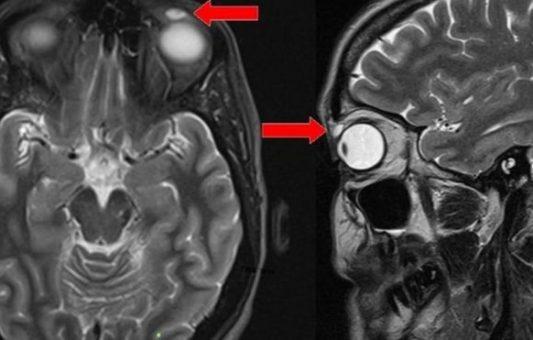 El extraño caso de una mujer a la que le hallaron un lente de contacto en el párpado después de 28 años de habérselo puesto